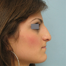 nose surgery glendale