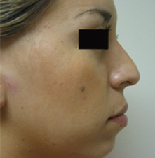 Norht Hollywood nose surgeon