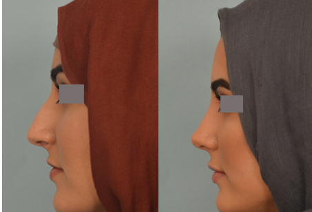 rhinoplasty surgeon beverly hills