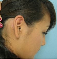 Ear Keloid treatment, Dr Grigoryants