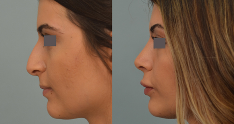 nose surgeon beverly hills