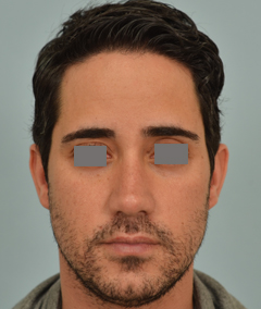 Dr Vladimir Grigoryants male rhinoplasty
