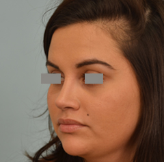 Dr Grigoryants rhinoplasty after photo
