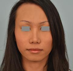 transgender rhinoplasty