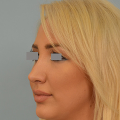rhinoplasty after photo Dr Grigoryants