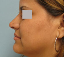 non surgical nose job los angeles