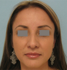 rhinoplasty before picture