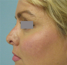 revision nose surgery los angeles
