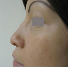 non surgical nose surgery los angeles