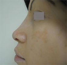 Los Angeles non surgical nose surgery