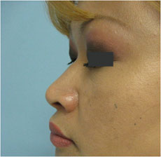 Asian nose surgery los angeles