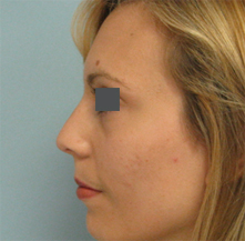 nose surgeon glendale