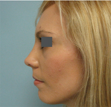 nose surgery burbank