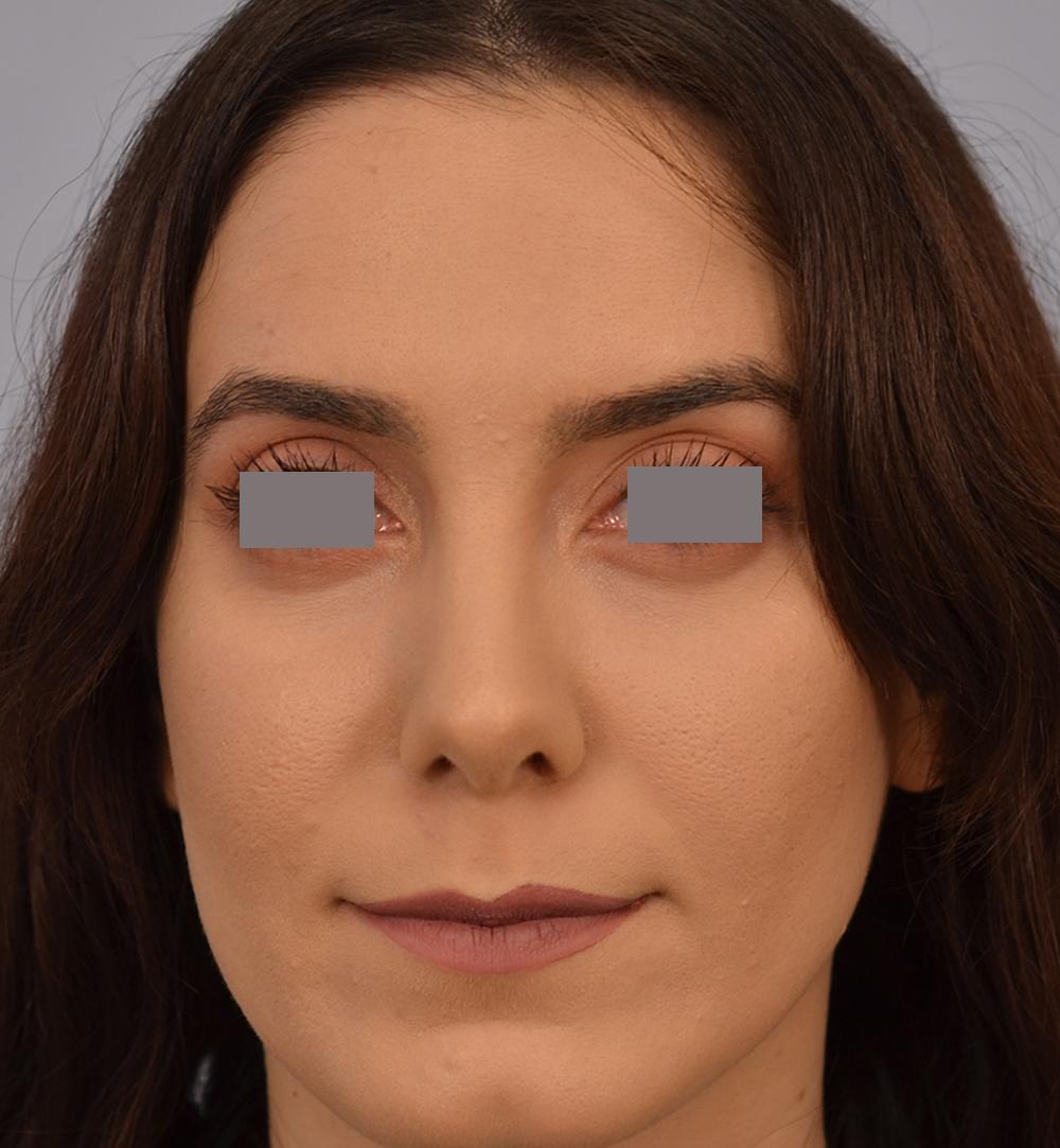 nose job rhinoplasty Grigoryants