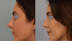 Long Term Results After Rhinoplasty Rhinoplasty Los Angeles Best Nose Surgery Options Dr Grigoryants