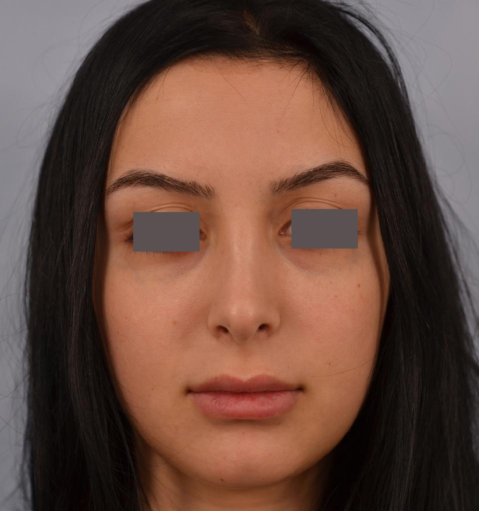 rhinoplasty - Dr. Grigoryants