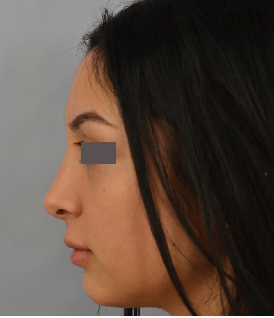 closed rhinoplasty by Dr. Grigoryants