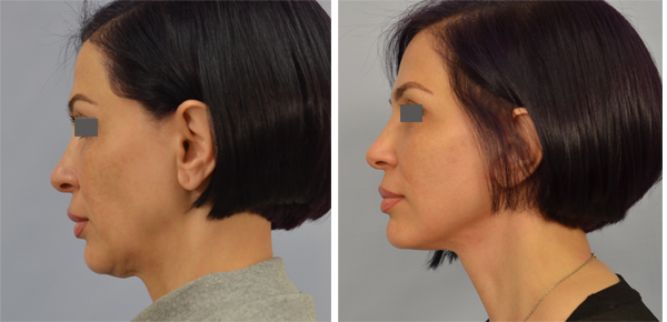 face and neck lift los angeles