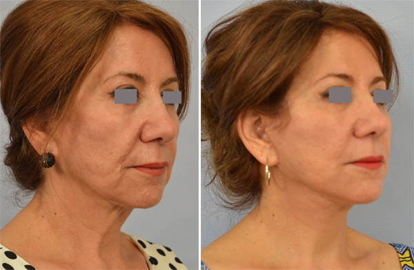 Best facelift los angeles