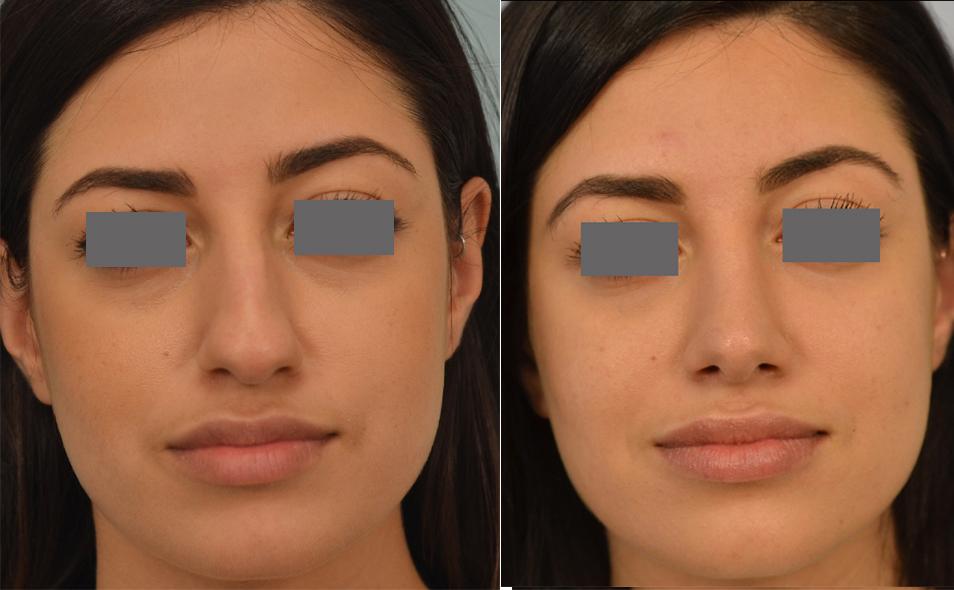 Dr. Grigoryants nose job