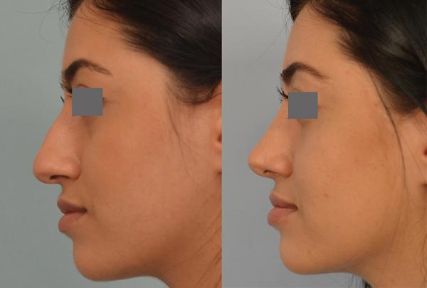 Grigoryants nose job