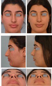 ethnic rhnoplasty Dr. Grigoryants