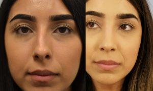 Crooked nose rhinoplasty - Rhinoplasty Los Angeles | Best