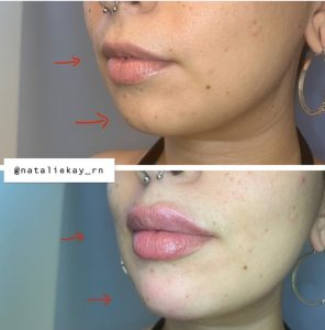 Lip and chin fillers Glendale