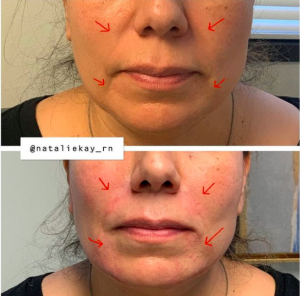 liquid facelift los angeles