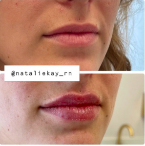 Lip injections Russian Lip