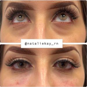 undereye injection NatalieKay_RN